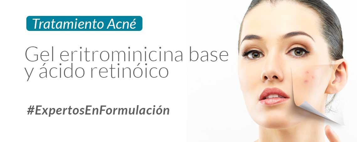 ¿Cómo formular un gel antiacné con gel carbopol y ácido retinoico? Fórmula del mes